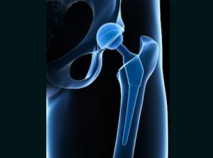 Anterior Hip Replacement Render - South Florida Orthopaedics