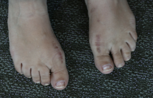 Beth's feet after healing from the Cartiva procedure.