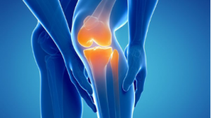 Total Knee Replacement South Florida Orthopaedics - OrthoCare